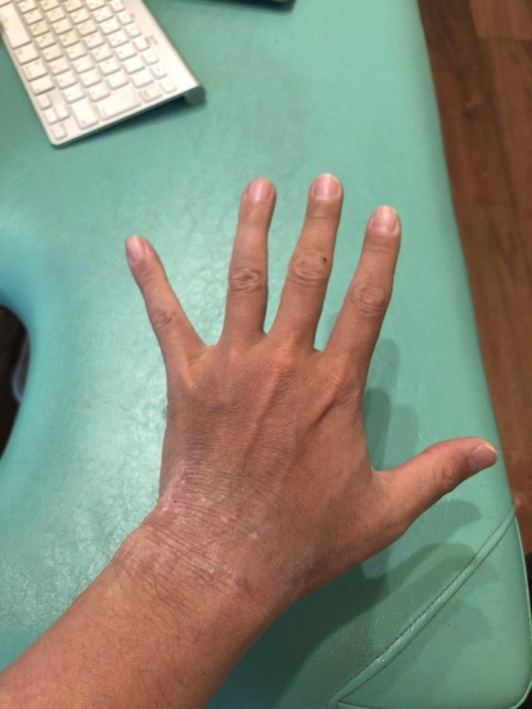 アトピー完治の左手