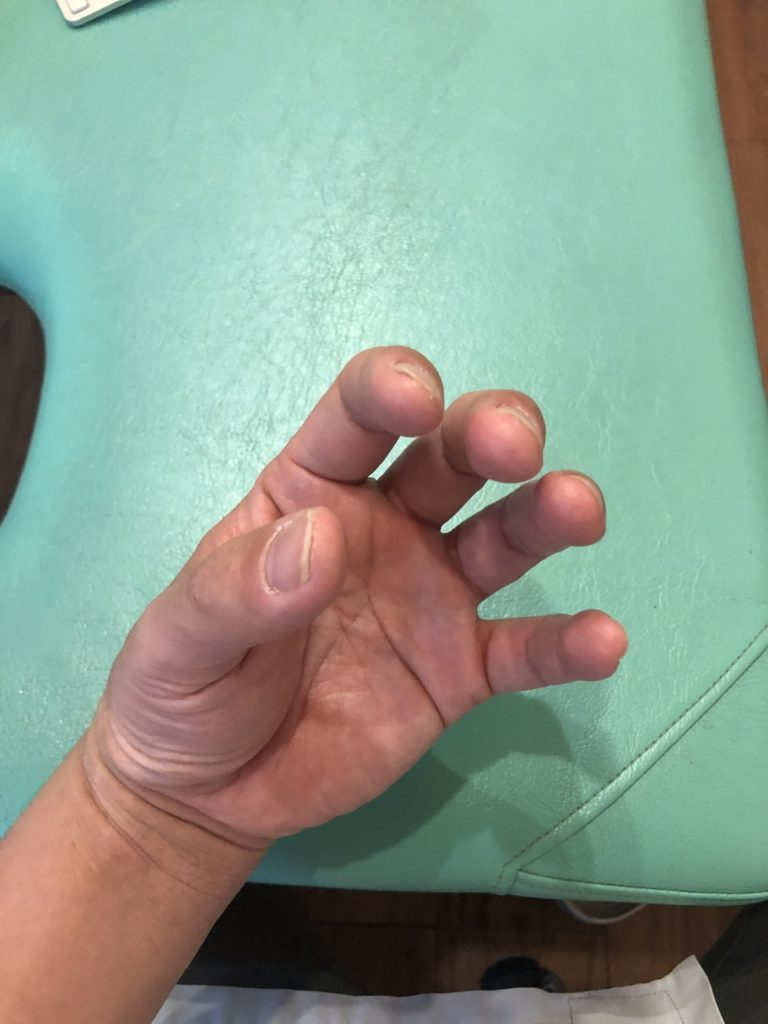 アトピー完治の指先